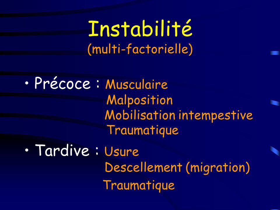 Instabilité (multi-factorielle)