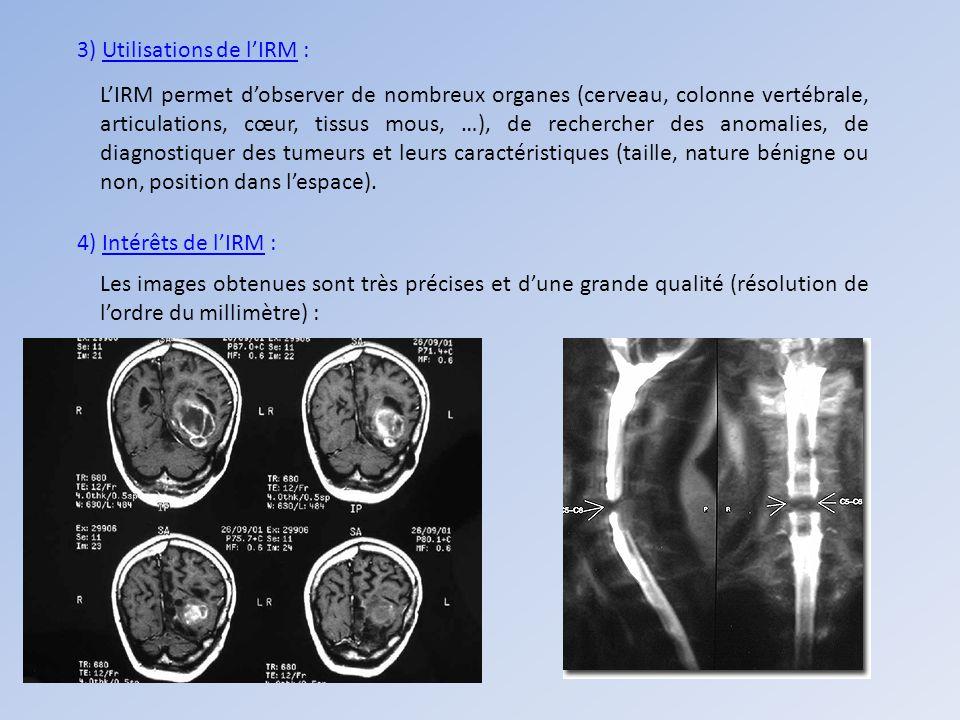 3) Utilisations de l'IRM :