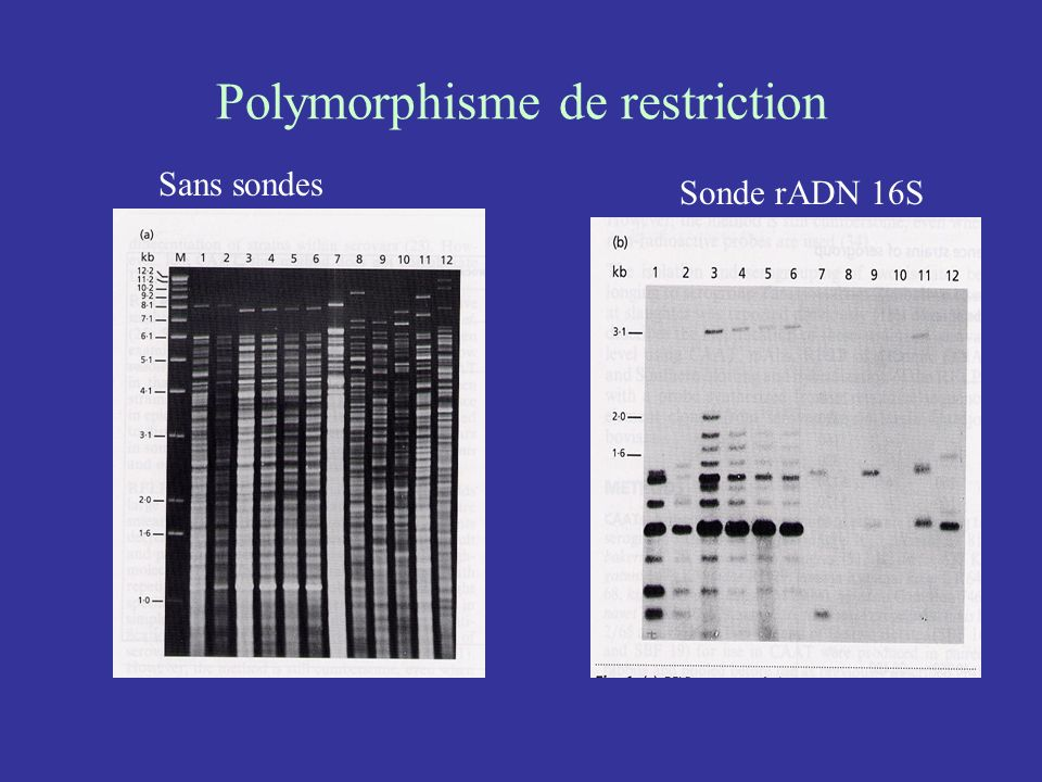 Polymorphisme de restriction