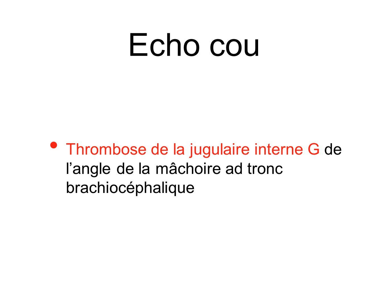 Echo cou Thrombose de la jugulaire interne G de l'angle de la mâchoire ad tronc brachiocéphalique
