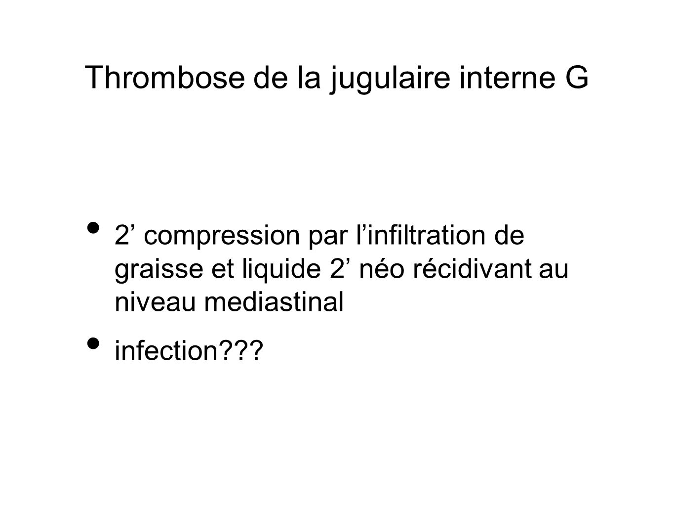 Thrombose de la jugulaire interne G
