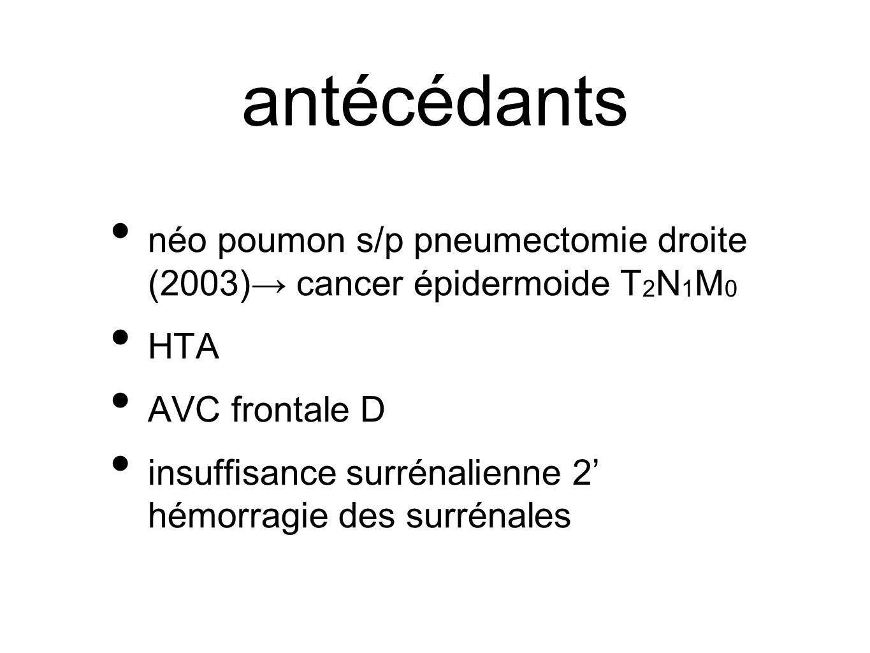 antécédants néo poumon s/p pneumectomie droite (2003)→ cancer épidermoide T2N1M0. HTA. AVC frontale D.