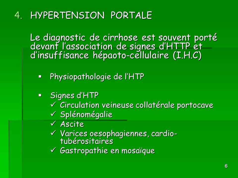 HYPERTENSION PORTALELe diagnostic de cirrhose est souvent porté devant l'association de signes d'HTTP et d'insuffisance hépaoto-cellulaire (I.H.C)