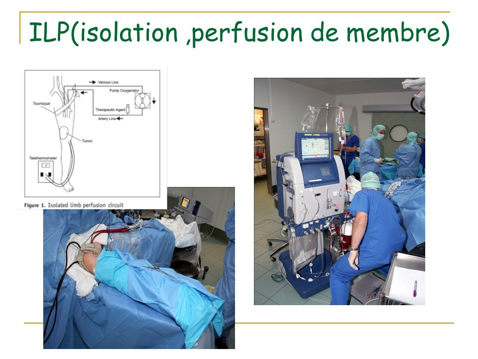 ILP(isolation ,perfusion de membre)