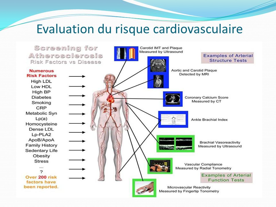Evaluation du risque cardiovasculaire