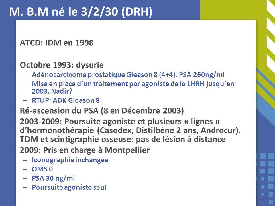 M. B.M né le 3/2/30 (DRH) ATCD: IDM en 1998 Octobre 1993: dysurie