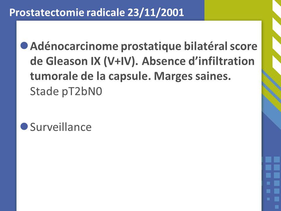 Prostatectomie radicale 23/11/2001