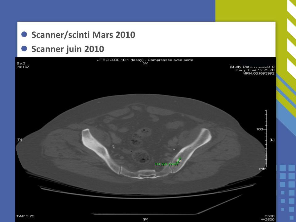 Scanner/scinti Mars 2010 Scanner juin 2010