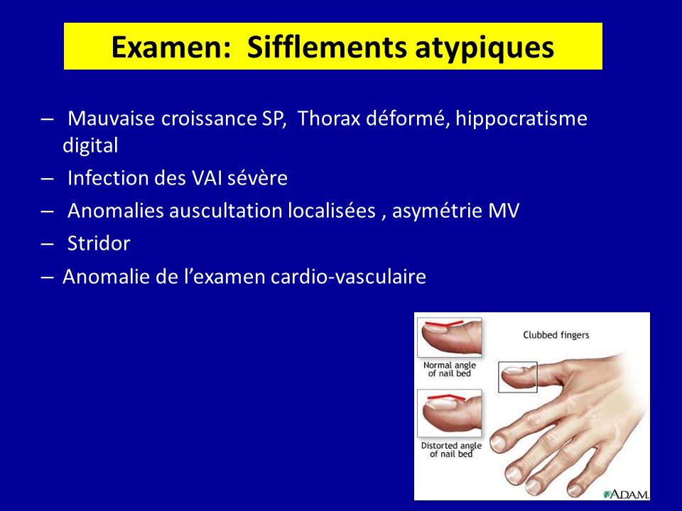 Examen: Sifflements atypiques