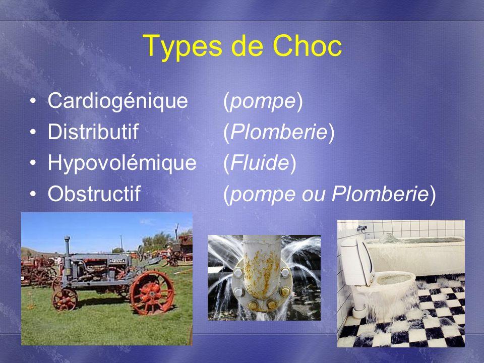 Types de Choc Cardiogénique (pompe) Distributif (Plomberie)