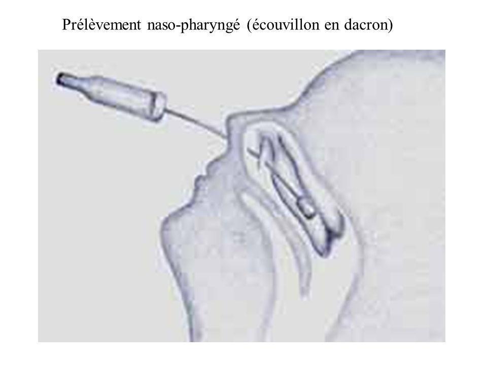 Prélèvement naso-pharyngé (écouvillon en dacron)