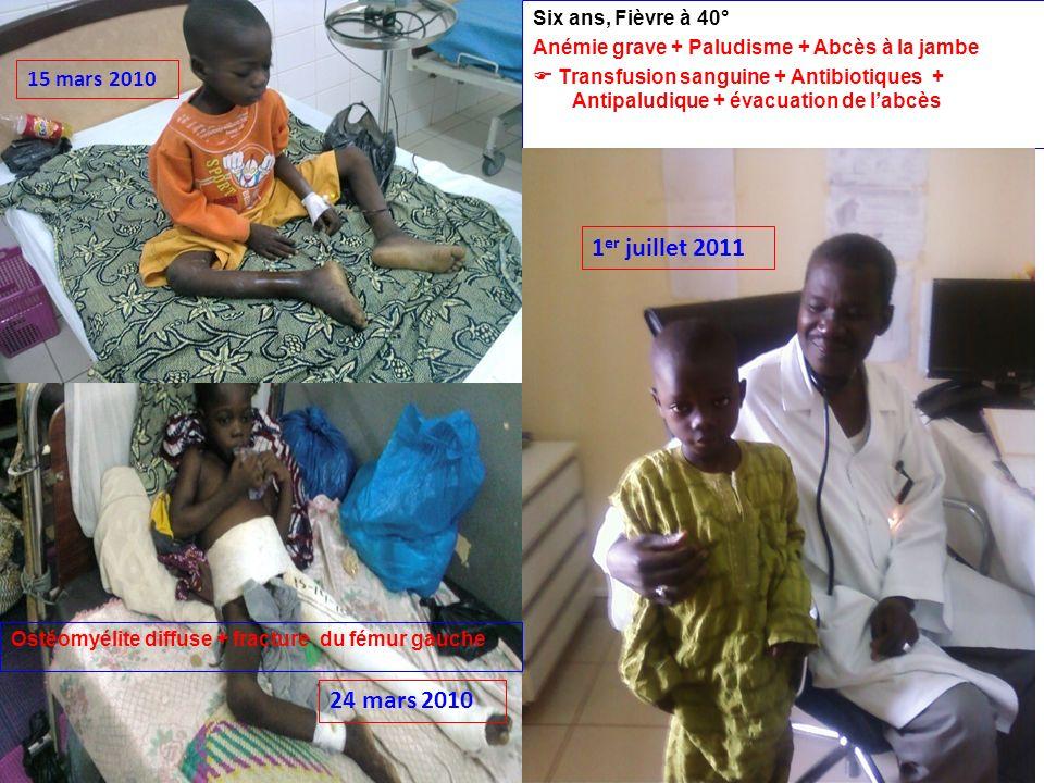 1er juillet 2011 24 mars 2010 15 mars 2010 Six ans, Fièvre à 40°