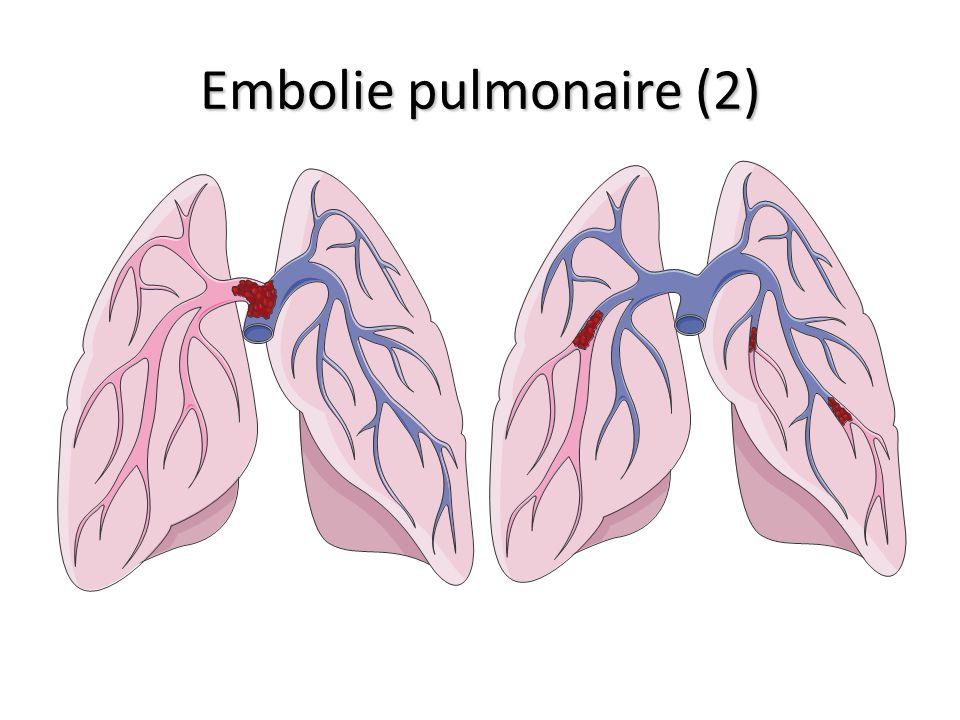 Embolie pulmonaire (2)