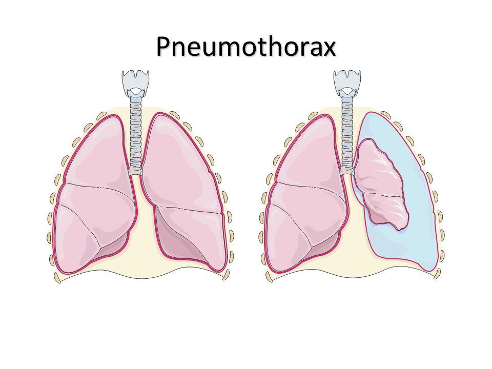 Pneumothorax Poumons sains Pneumothorax