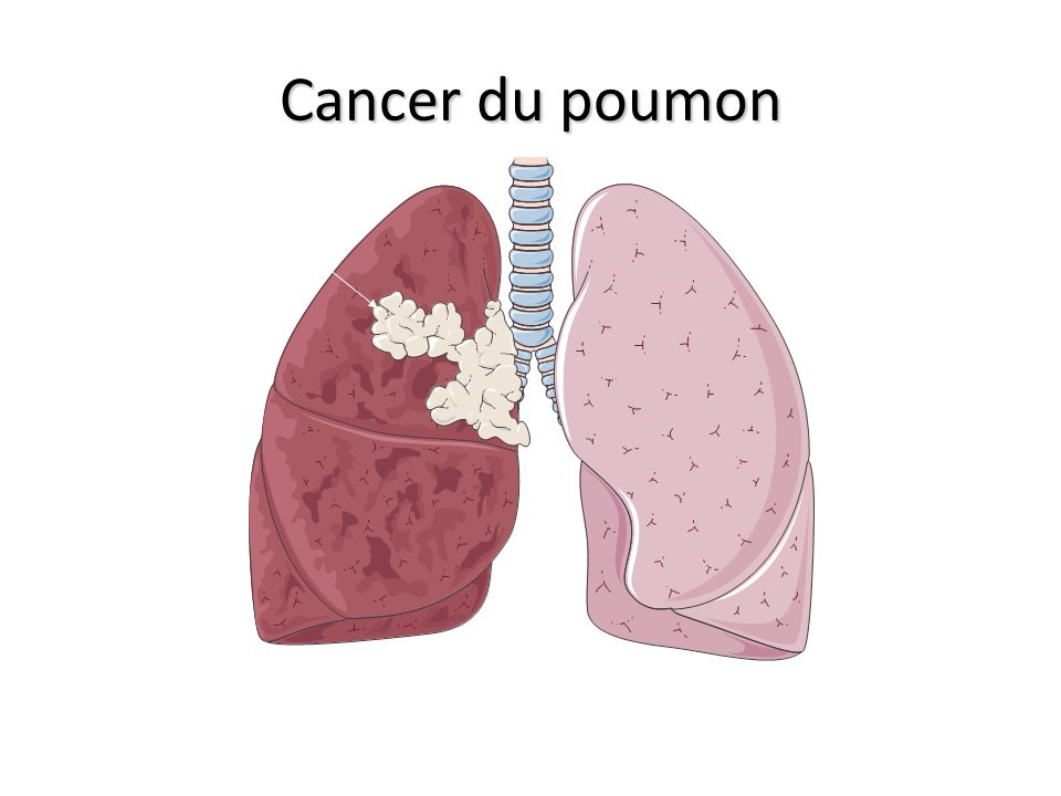 Cancer du poumon Cancer Poumon d'un fumeur Poumon sain