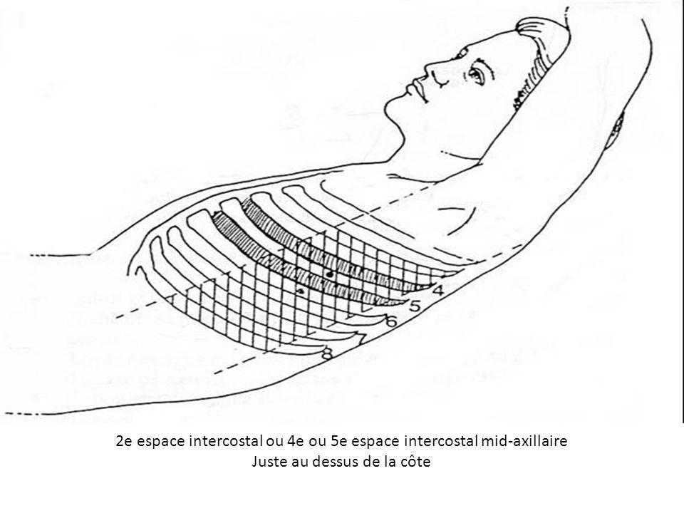 2e espace intercostal ou 4e ou 5e espace intercostal mid-axillaire