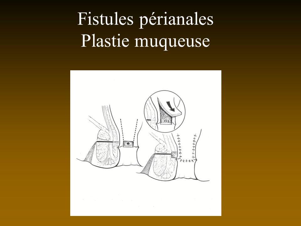 Fistules périanales Plastie muqueuse