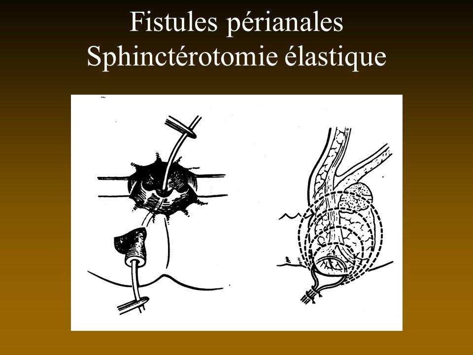 Fistules périanales Sphinctérotomie élastique