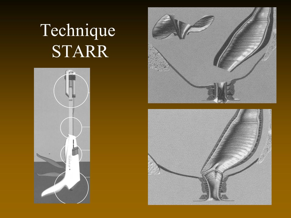 Technique STARR