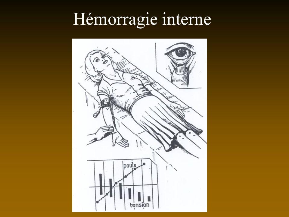 Hémorragie interne