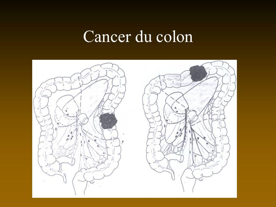 Cancer du colon