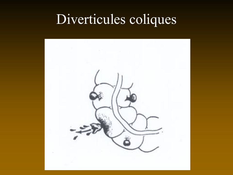 Diverticules coliques