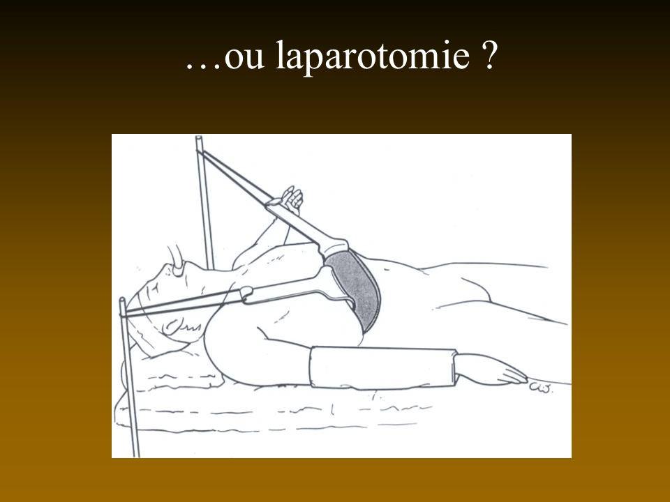 …ou laparotomie