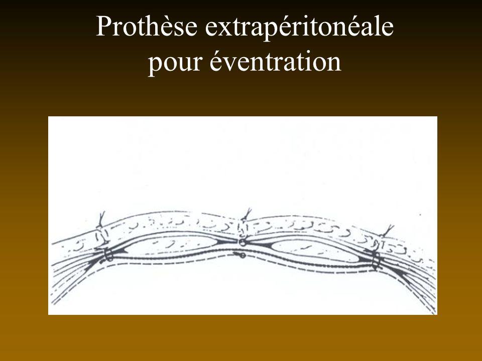 Prothèse extrapéritonéale pour éventration