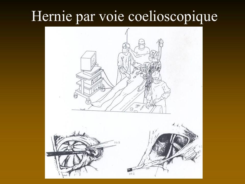 Hernie par voie coelioscopique