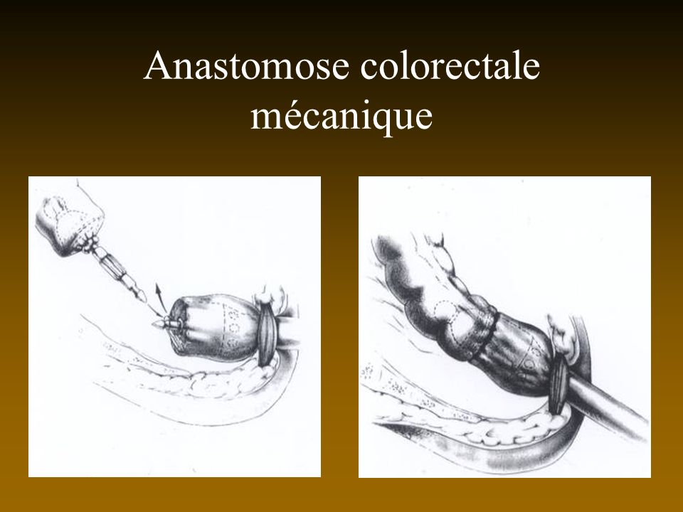 Anastomose colorectale mécanique