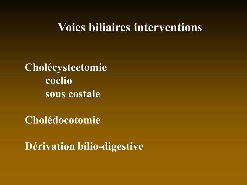 Voies biliaires interventions