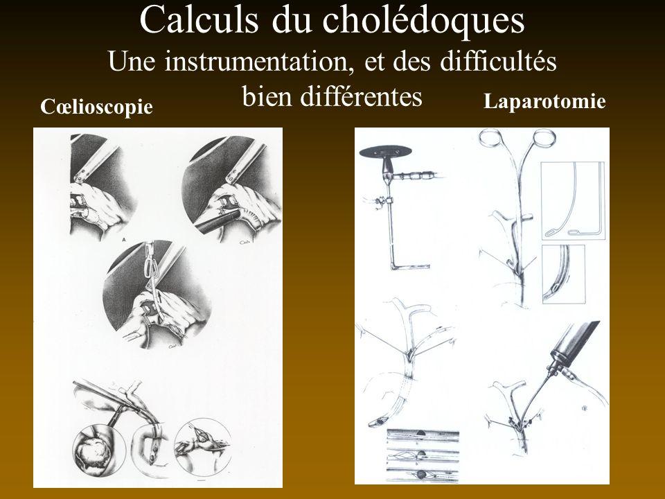 Calculs du cholédoques Une instrumentation, et des difficultés bien différentes