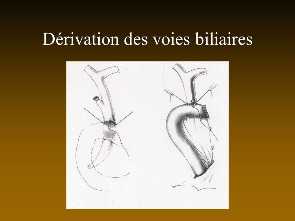 Dérivation des voies biliaires