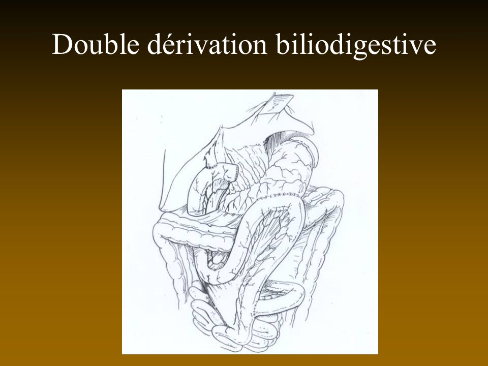 Double dérivation biliodigestive