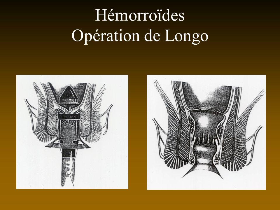 Hémorroïdes Opération de Longo