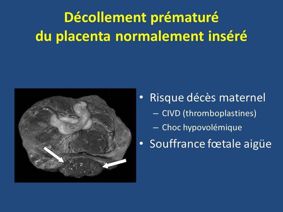 Décollement prématuré du placenta normalement inséré