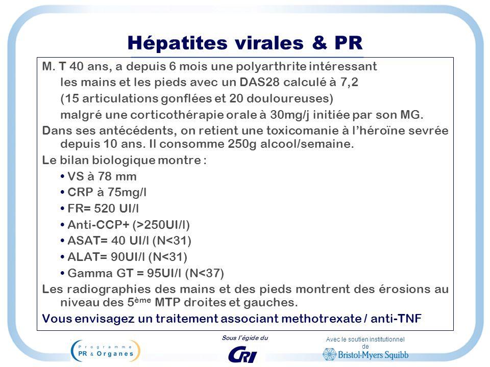 Hépatites virales & PR M. T 40 ans, a depuis 6 mois une polyarthrite intéressant. les mains et les pieds avec un DAS28 calculé à 7,2.