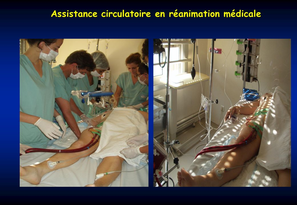 Assistance circulatoire en réanimation médicale