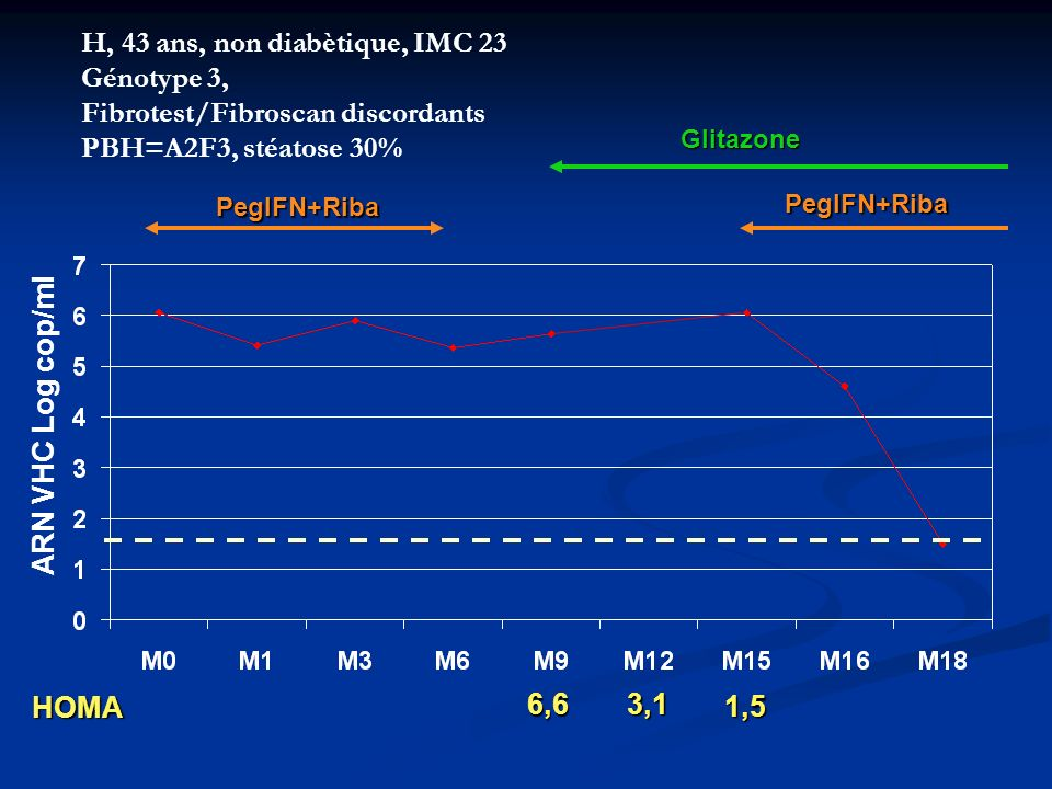 H, 43 ans, non diabètique, IMC 23 Génotype 3, Fibrotest/Fibroscan discordants PBH=A2F3, stéatose 30%