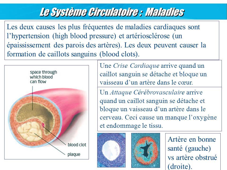 Le Système Circulatoire : Maladies