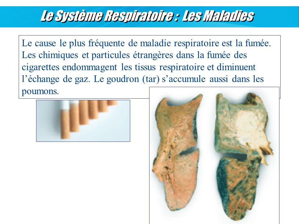 Le Système Respiratoire : Les Maladies