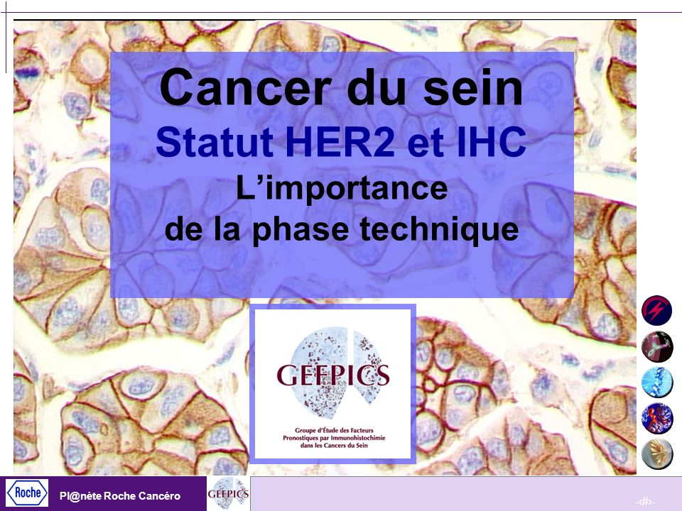 Cancer du sein Statut HER2 et IHC L'importance de la phase technique