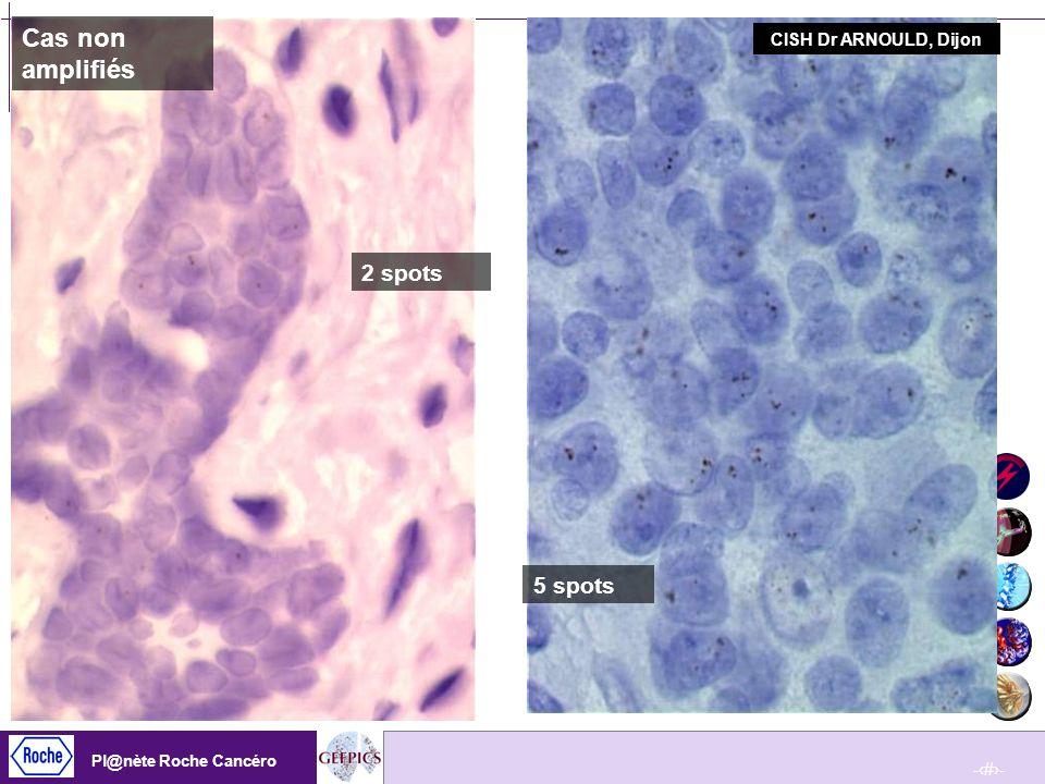 Cas non amplifiés CISH Dr ARNOULD, Dijon 2 spots 5 spots