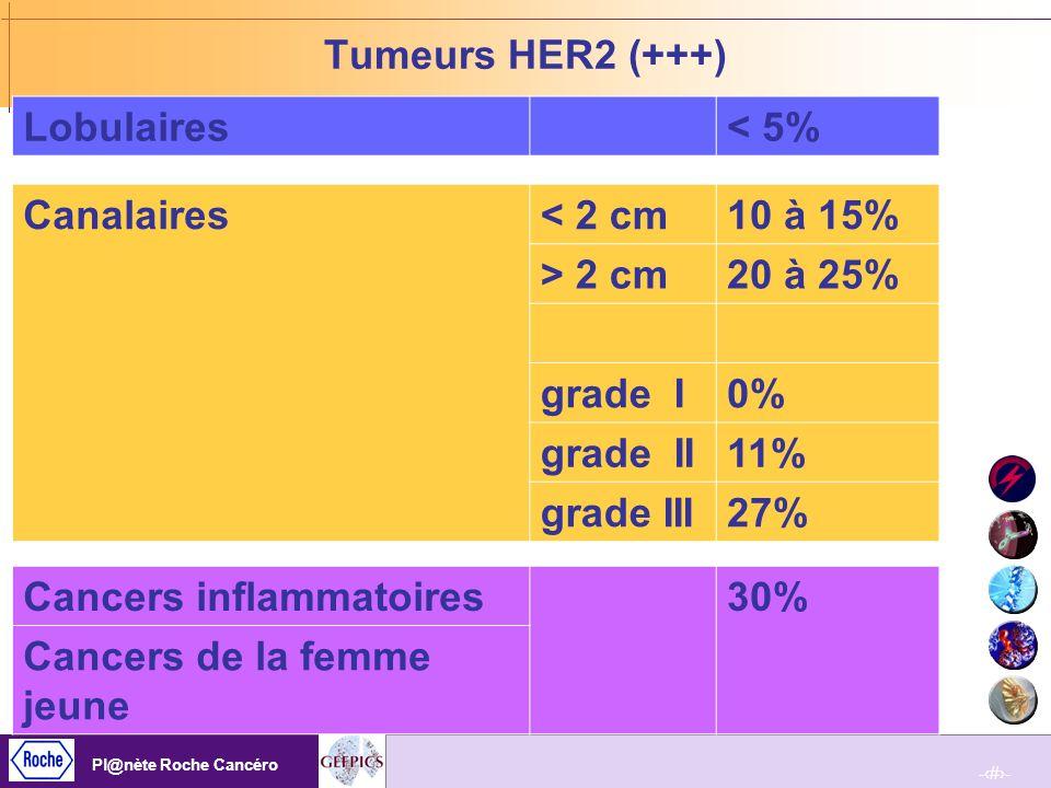 Cancers inflammatoires 30% Cancers de la femme jeune