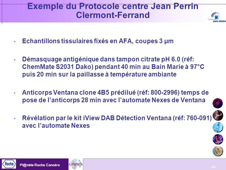 Exemple du Protocole centre Jean Perrin Clermont-Ferrand