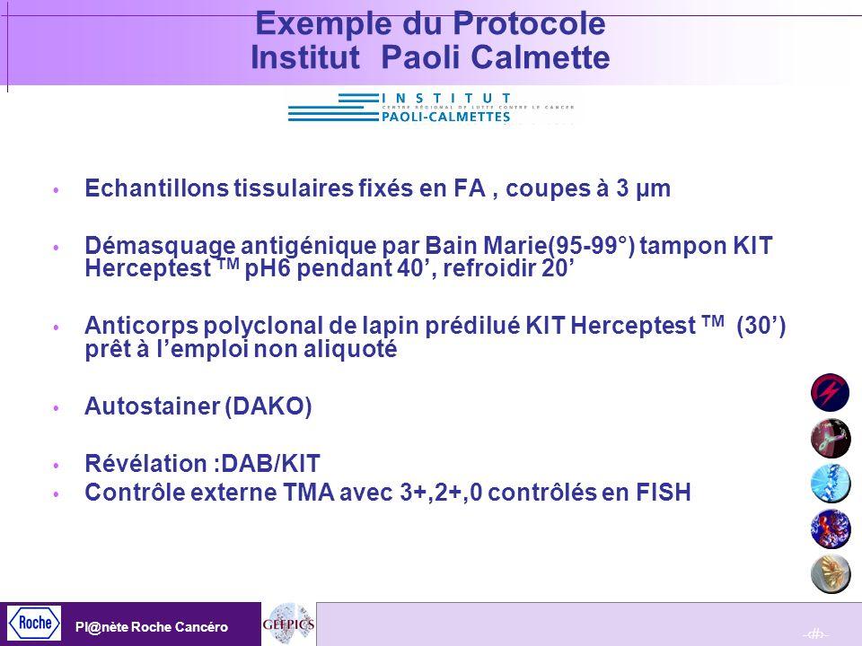 Exemple du Protocole Institut Paoli Calmette