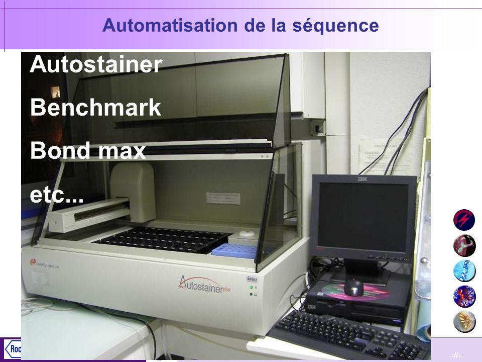 Automatisation de la séquence