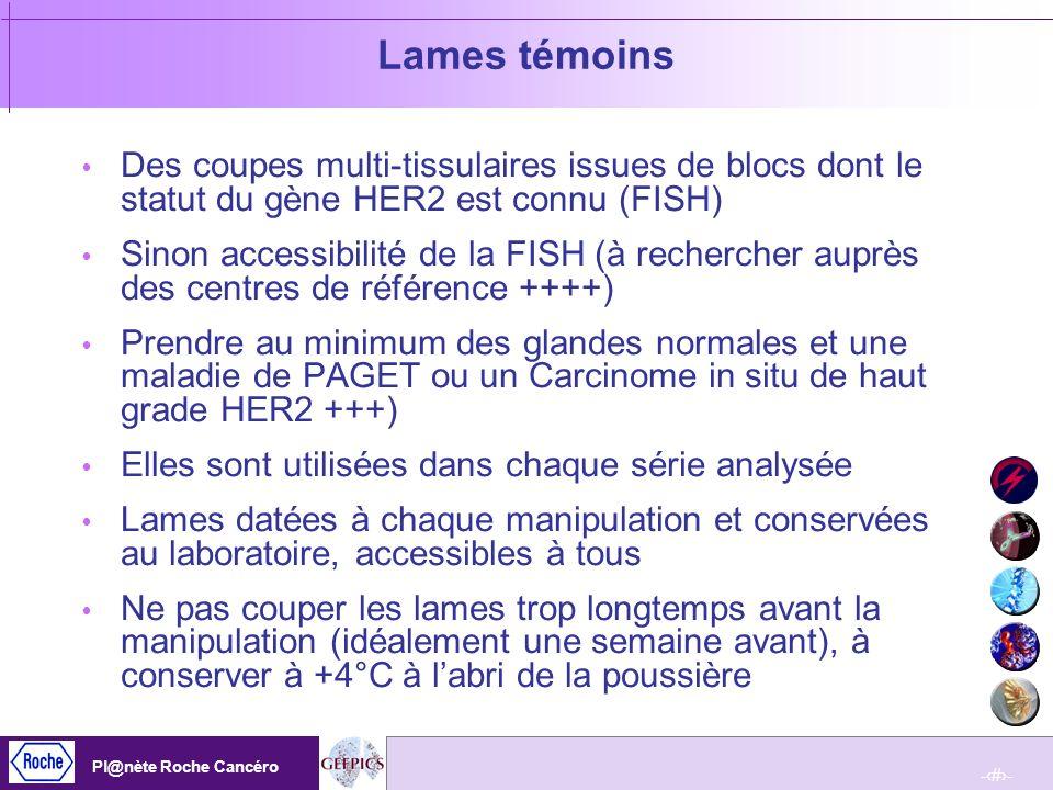 Lames témoinsDes coupes multi-tissulaires issues de blocs dont le statut du gène HER2 est connu (FISH)