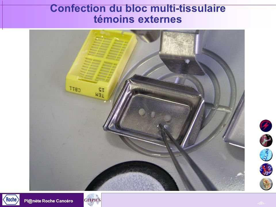 Confection du bloc multi-tissulaire témoins externes