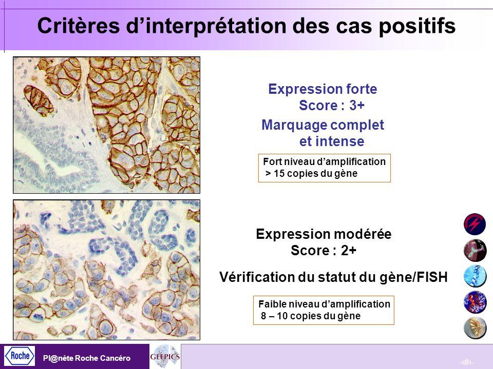 Critères d'interprétation des cas positifs